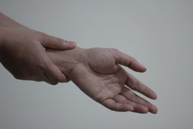 one hand holding the wrist of the other because of wrist pain caused by Carpal Tunnel Syndrome